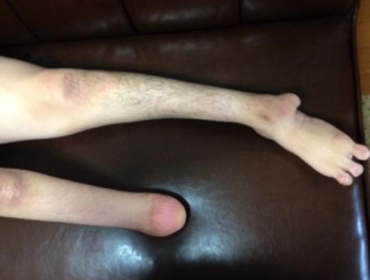この足を個性と捉えるか否か。